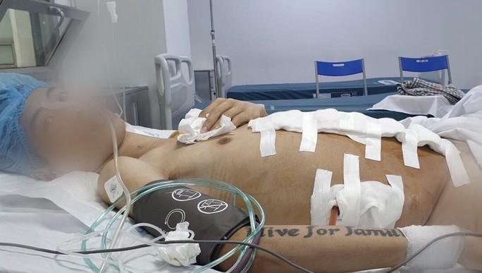 Cắt khối u khủng 25 kg trong bụng của thanh niên 9x - Ảnh 2.