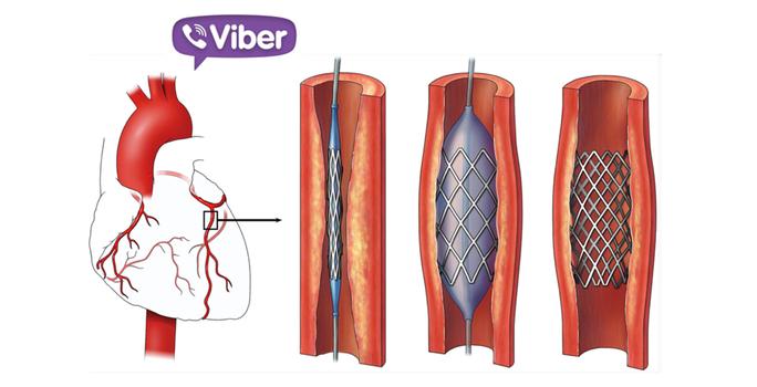 Kết nối Viber, cứu người đàn bà bị nhồi máu cơ tim trên xe - Ảnh 1.