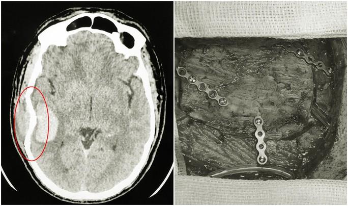 Chấn thương lúc chơi bóng đá, một nam giới bị vỡ sọ não nguy kịch - Ảnh 2.