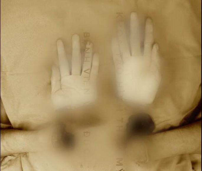 Thanh niên 19 tuổi gõ máy tính nhoay nhoáy sau nối liền hai bàn tay đứt rời - Ảnh 1.
