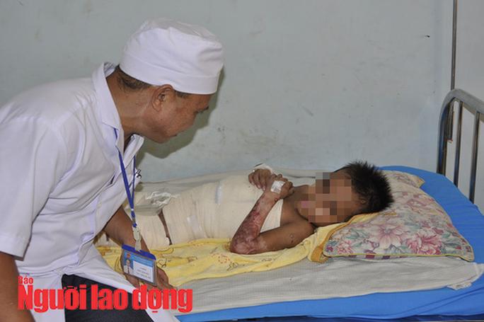 Vội vã đưa cháu bé bị phỏng đi chữa trị vì sợ gia đình ngăn cản - Ảnh 1.