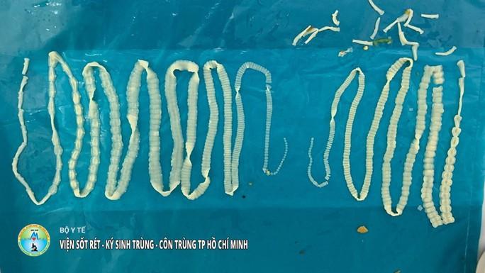 Hai con sán dây dài tổng cộng 4 m sống trong bụng người đàn ông - Ảnh 1.