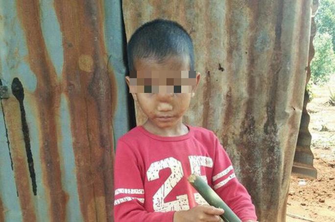 Căn bệnh kỳ lạ khiến cậu bé bị tụt não xuống mũi - Ảnh 1.