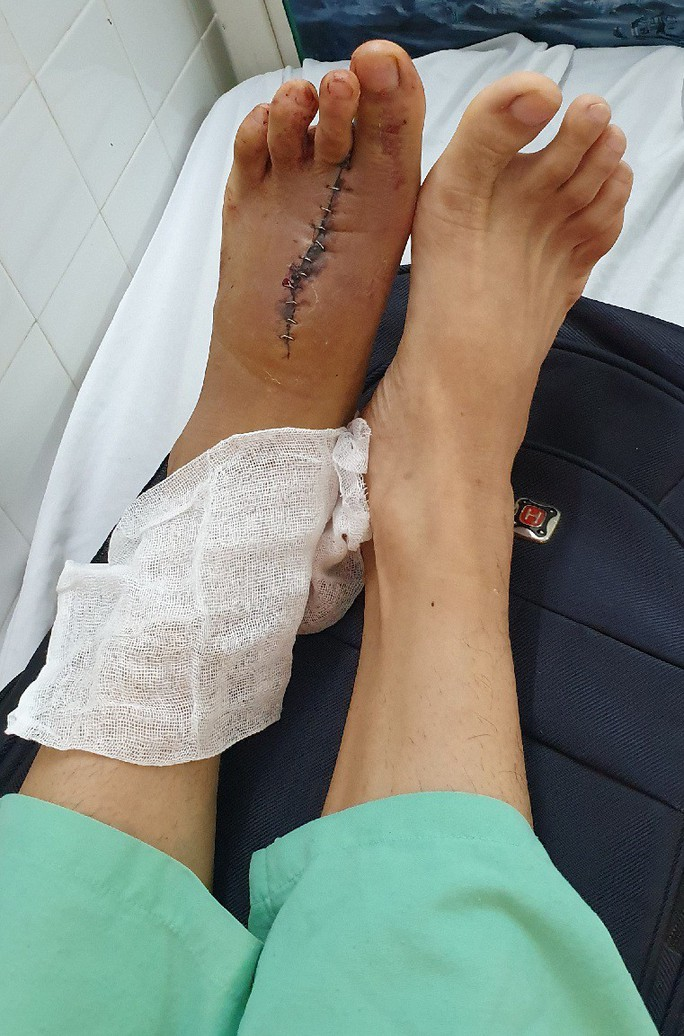 Lấy ngón chân nối thành công vào ngón tay bị mất - Ảnh 2.