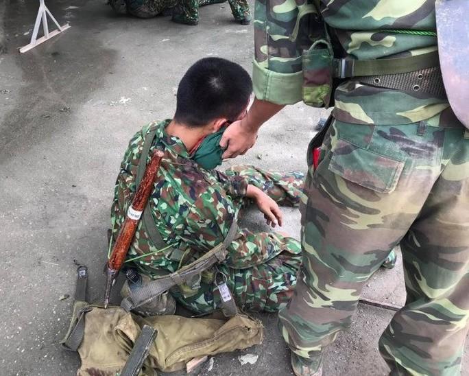 Xe quân sự bị lật, hàng chục chiến sĩ gặp nạn - Ảnh 3.