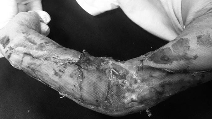 Chập chững ra đường, bé trai 19 tháng tuổi bị xe tải cán nát cánh tay - Ảnh 1.