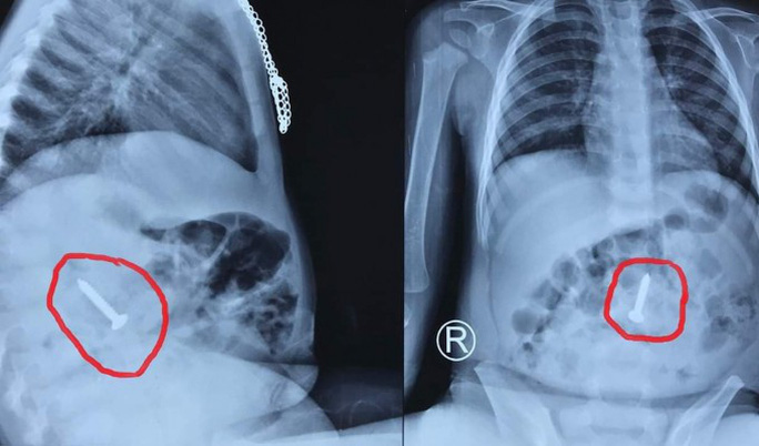 Đinh vít bằng sắt dài 3,5 cm nằm trong tá tràng cháu bé 20 tháng tuổi - Ảnh 1.