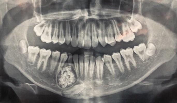 Hi hữu: Lấy gần 100 cái răng trong miệng một thiếu niên ở Khánh Hòa - Ảnh 1.