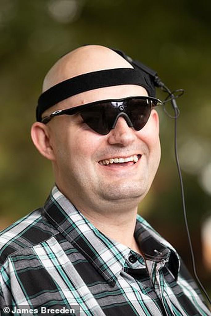 Đột phá phương pháp chiếu phim giúp người mù 26 năm sáng mắt - Ảnh 1.