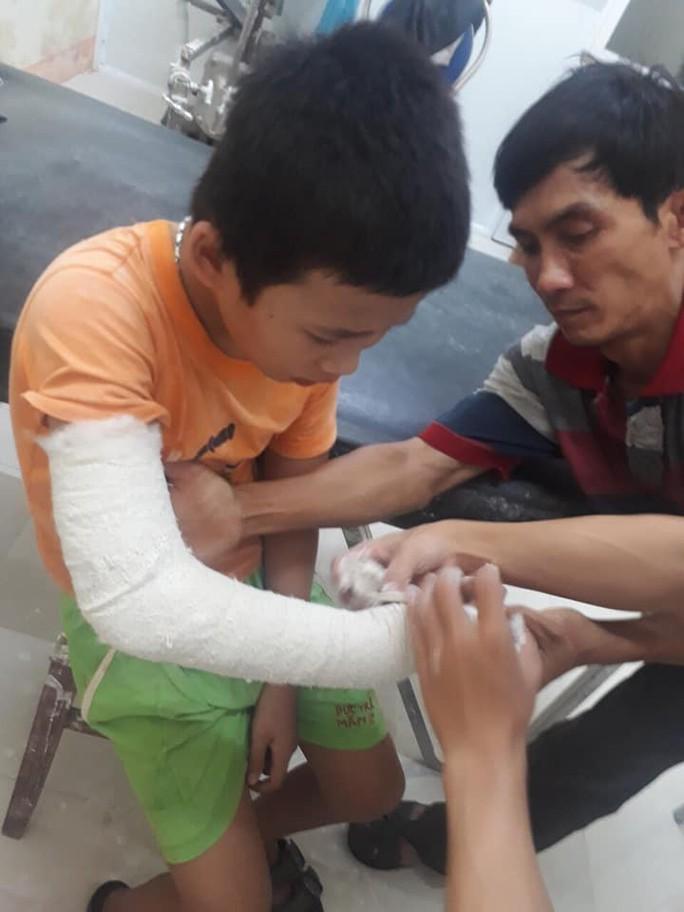 Cậu bé bán vé số phụ giúp ba mẹ tâm thần bị cướp đánh gãy tay - Ảnh 1.
