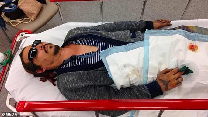 Cướp biển Johnny Depp tung ảnh thê thảm cáo buộc vợ cũ bạo hành - Ảnh 1.