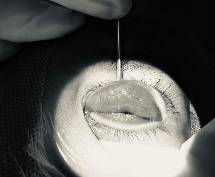Mắt mờ dần sau nhấn mí ở tiệm spa, cô gái hoảng hốt khi bác sĩ tìm thấy nguyên nhân - Ảnh 1.