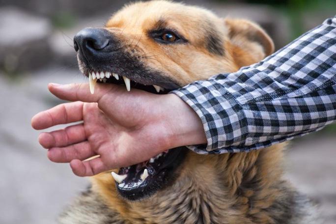 Thanh niên tử vong sau 3 tháng bị chó nhà cắn - Ảnh 1.