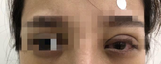 Mắt mờ dần sau nhấn mí ở tiệm spa, cô gái hoảng hốt khi bác sĩ tìm thấy nguyên nhân - Ảnh 2.