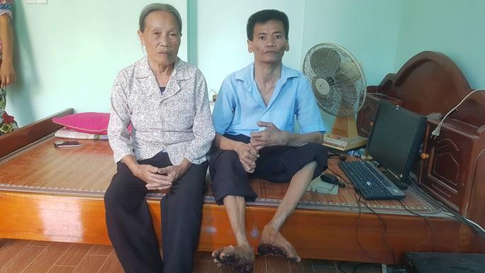 Cuộc sống khốn khổ của người cây kỳ lạ ở Việt Nam - Ảnh 10.