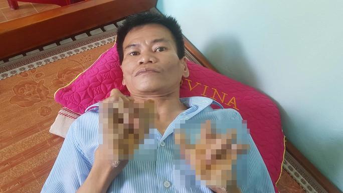 Cuộc sống khốn khổ của người cây kỳ lạ ở Việt Nam - Ảnh 11.