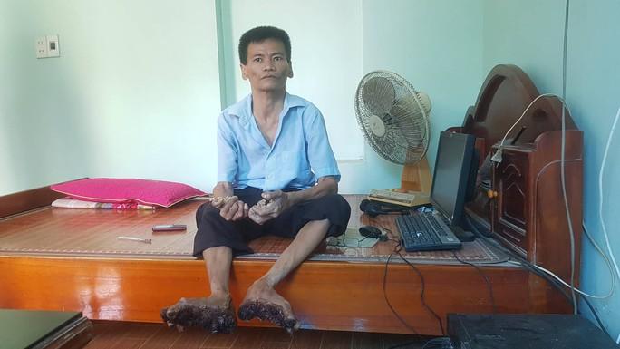 Cuộc sống khốn khổ của người cây kỳ lạ ở Việt Nam - Ảnh 13.
