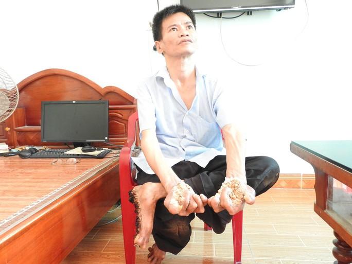 Cuộc sống khốn khổ của người cây kỳ lạ ở Việt Nam - Ảnh 4.