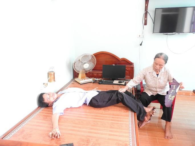 Cuộc sống khốn khổ của người cây kỳ lạ ở Việt Nam - Ảnh 9.