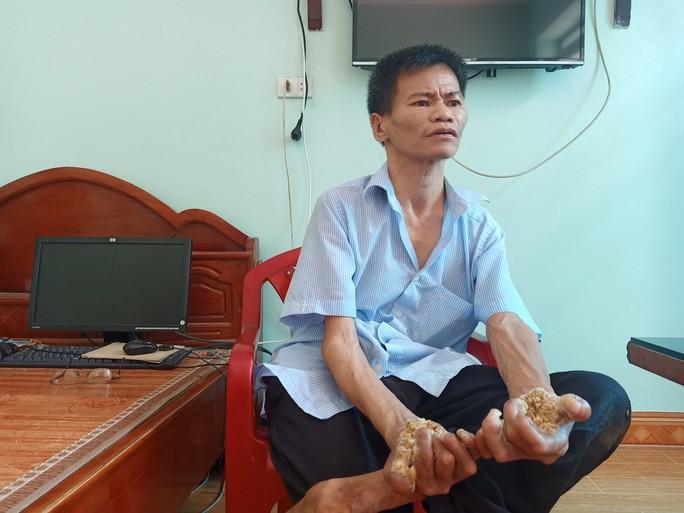 Cuộc sống khốn khổ của người cây kỳ lạ ở Việt Nam - Ảnh 2.