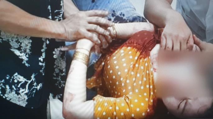Clip: Người phụ nữ bị tấn công bằng dao ngay trên đường - Ảnh 3.