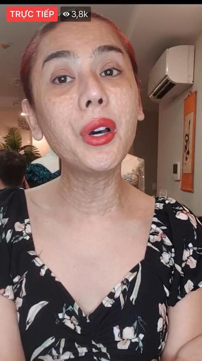 Sao Việt muối mặt với sự cố livestream - Ảnh 3.