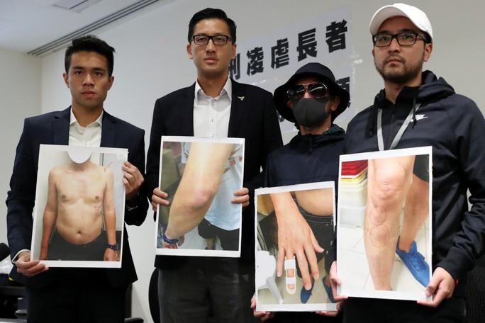Cảnh sát Hồng Kông tra tấn cụ ông trong bệnh viện - Ảnh 1.