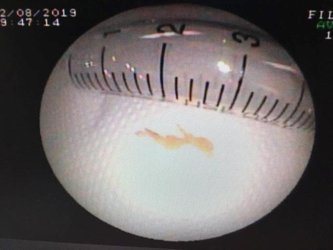 Trẻ 10 tuổi bị mảnh xương cá găm trong phổi suốt một tháng - Ảnh 2.