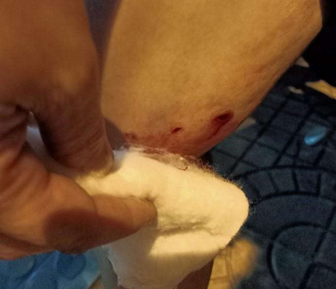 Chó dữ tấn công nhiều người giữa chợ dương tính với bệnh dại - Ảnh 2.