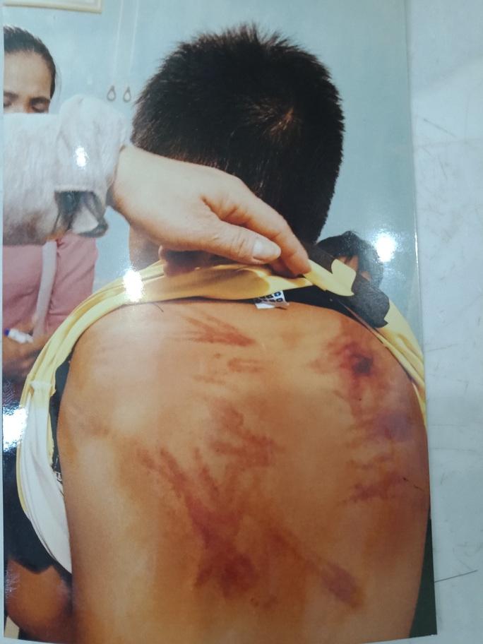 Điều tra việc người đàn ông tu hành tại gia đánh đập dã man bé trai - Ảnh 1.