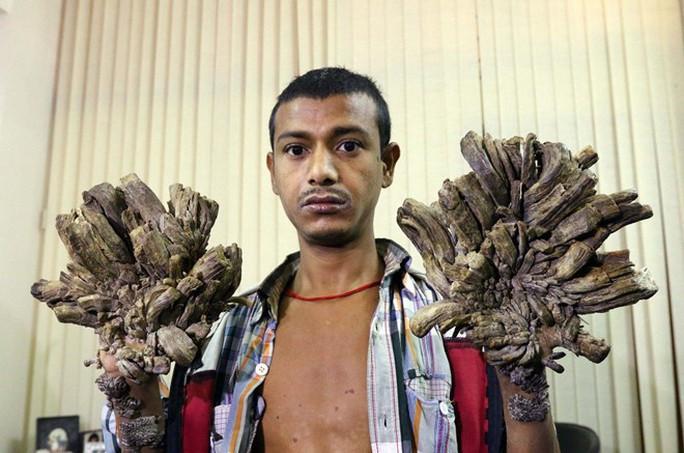 Bệnh người cây cực kỳ hiếm gặp đã được ghi nhận ở Việt Nam - Ảnh 3.
