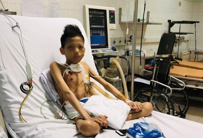 Cuộc sống trong lồng kính của thiếu niên 17 tuổi nặng 30 kg được ghép phổi với chi phí 5 tỉ đồng - Ảnh 5.