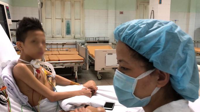 Cuộc sống trong lồng kính của thiếu niên 17 tuổi nặng 30 kg được ghép phổi với chi phí 5 tỉ đồng - Ảnh 1.