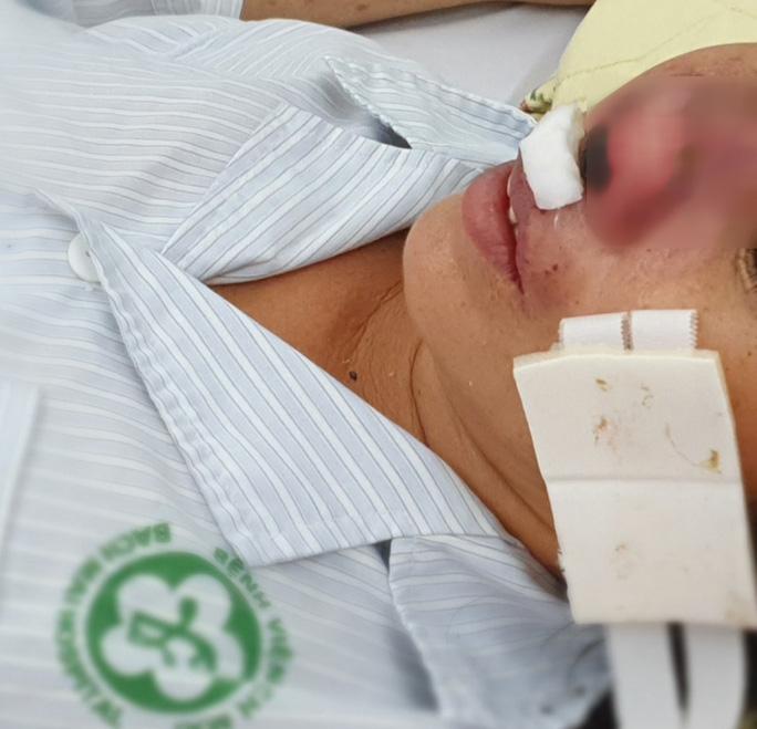 Người phụ nữ bị vi khuẩn lãng quên ăn vẹt cánh mũi - Ảnh 1.