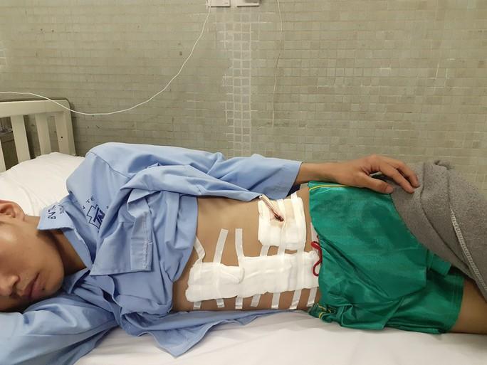 Vừa vào TP HCM tìm việc sau bão lũ, chàng trai miền Trung mất cả lách tụy - Ảnh 1.