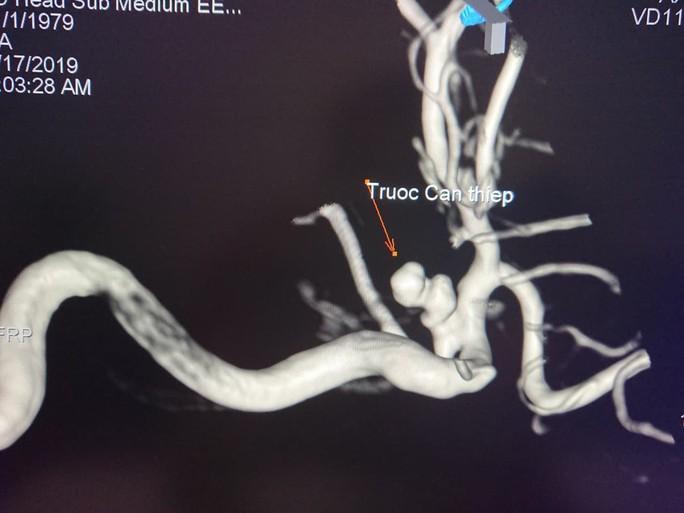 Thả 5 coil vào túi phình mạch máu não cứu nữ bệnh nhân đang sùi bọt mép - Ảnh 2.