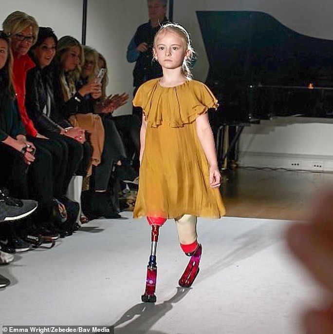 Mẫu nhí không chân làm nên lịch sử trên sàn catwalk - Ảnh 6.