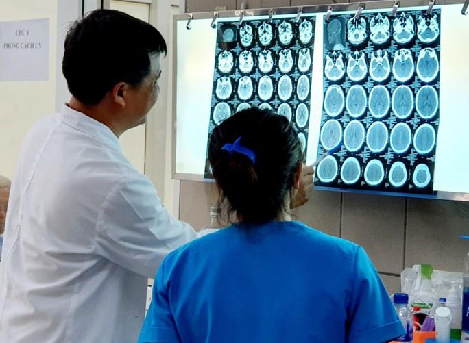 Hít ma tuý đá, thanh niên 27 tuổi bị xuất huyết và phù não nặng - Ảnh 1.