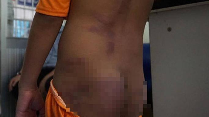 2 chị gái bạo hành dã man 4 anh em họ ở Cà Mau - Ảnh 3.