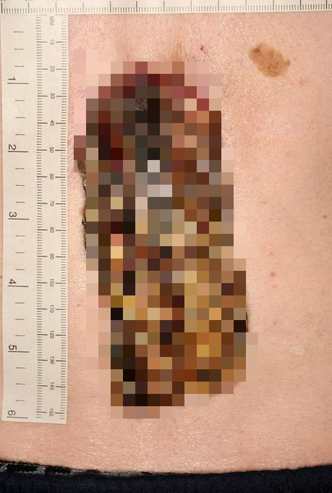 """Bỏ lơ 3 năm, miếng da nhỏ biến thành """"sừng rồng"""" 14 cm - Ảnh 2."""