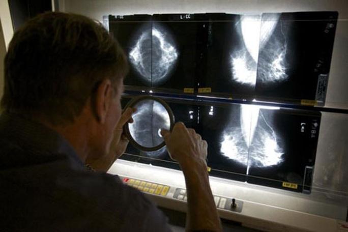 AI có thể giúp chẩn đoán ung thư vú chính xác hơn - Ảnh 1.