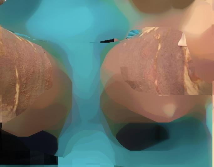 Sau hút mỡ tại Thẩm mỹ viện Việt Hàn, cô gái nhập viện vì bỏng da đùi - Ảnh 1.