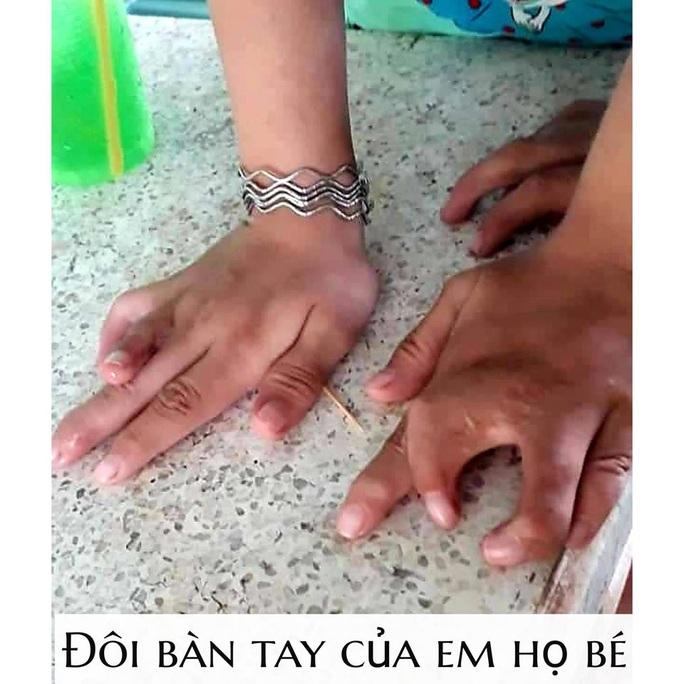 Một dòng họ ở Tiền Giang bị dị tật càng cua hiếm gặp - Ảnh 1.