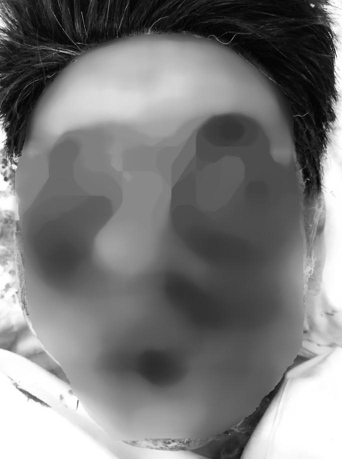Rùng mình với khuôn mặt nham nhở của người đàn ông do đốt pháo tự chế - Ảnh 1.