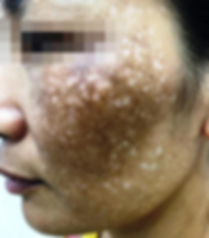 Chi hàng trăm triệu chữa nám má da mặt vẫn loang lổ, sạm đen - Ảnh 1.