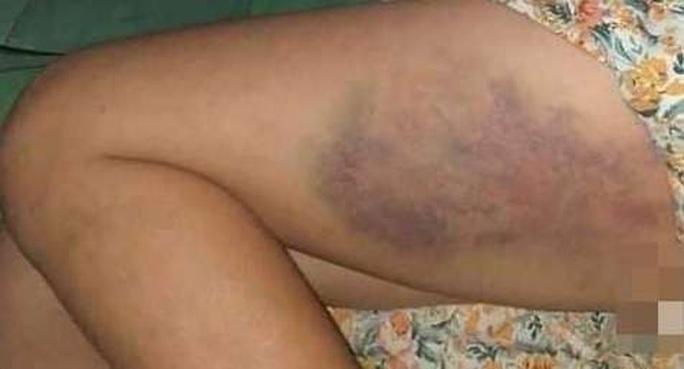 Đề xuất xử phạt hành chính cô giáo đánh bầm dập bé gái lớp 3 - Ảnh 1.