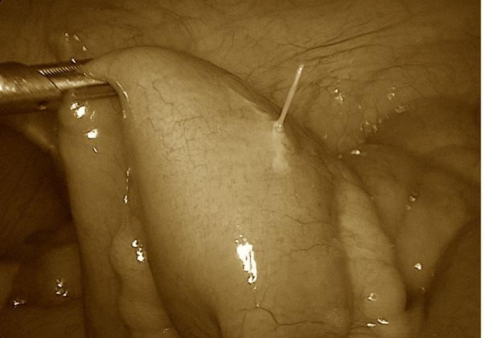 Đau bụng sau ăn phở, hoá ra nuốt phải tăm lúc nào không hay - Ảnh 1.