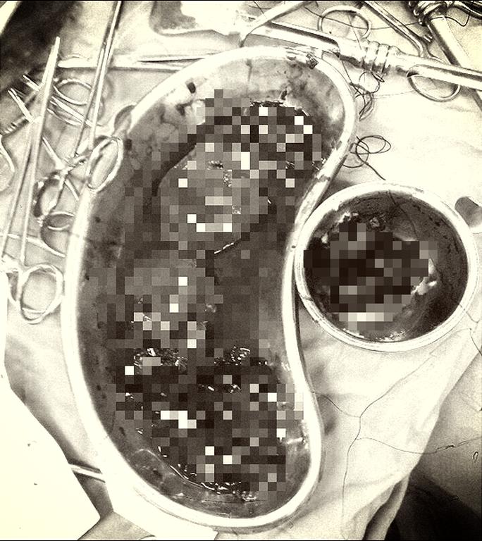 Người phụ nữ đứt đôi quả thận được cứu sống nhờ báo động đỏ - Ảnh 1.