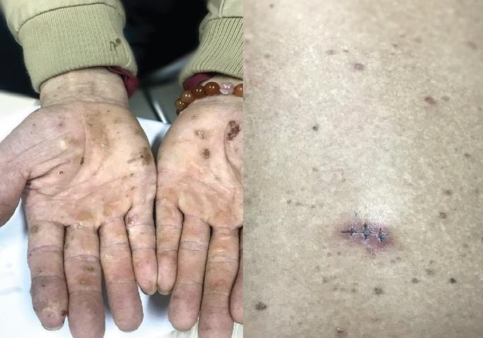 Nhiễm độc thạch tín gây ung thư da từ mỹ phẩm không rõ nguồn gốc - Ảnh 1.
