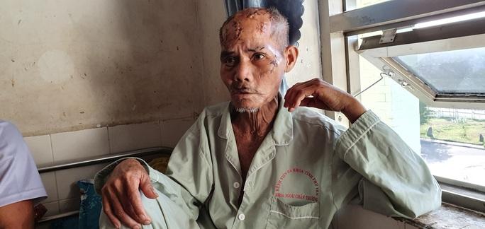 Phú Yên: Xét xử vụ cháu băm nát đầu ông nội liên quan đến tranh giành đất - Ảnh 2.
